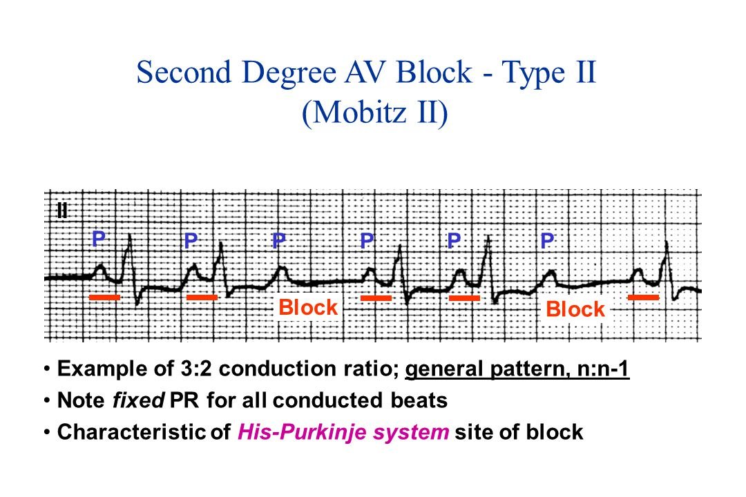 Second Degree AV Block - Type II (Mobitz II)