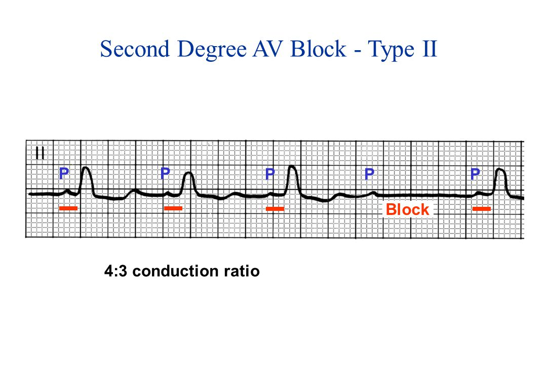 Second Degree AV Block - Type II