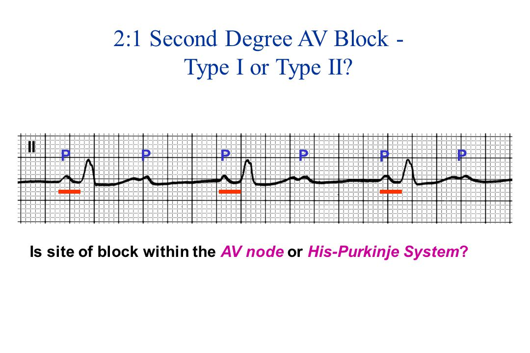 2:1 Second Degree AV Block - Type I or Type II