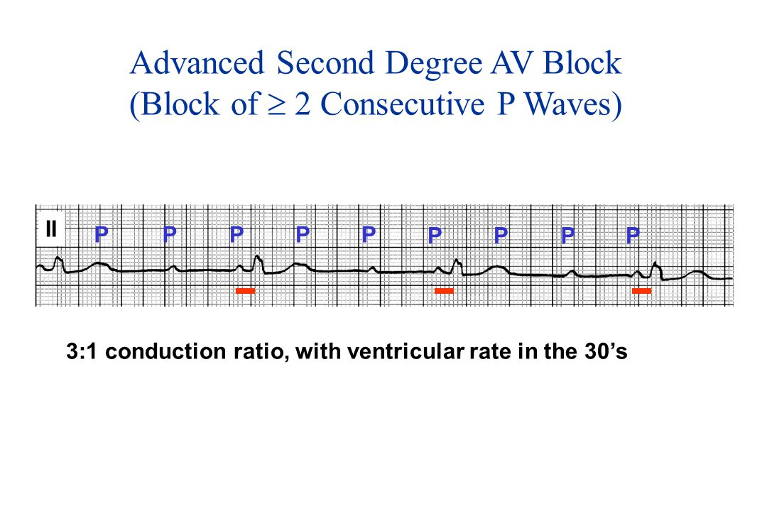 Advanced Second Degree AV Block (Block of  2 Consecutive P Waves)