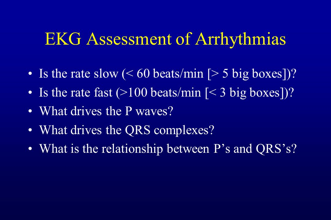 EKG Assessment of Arrhythmias