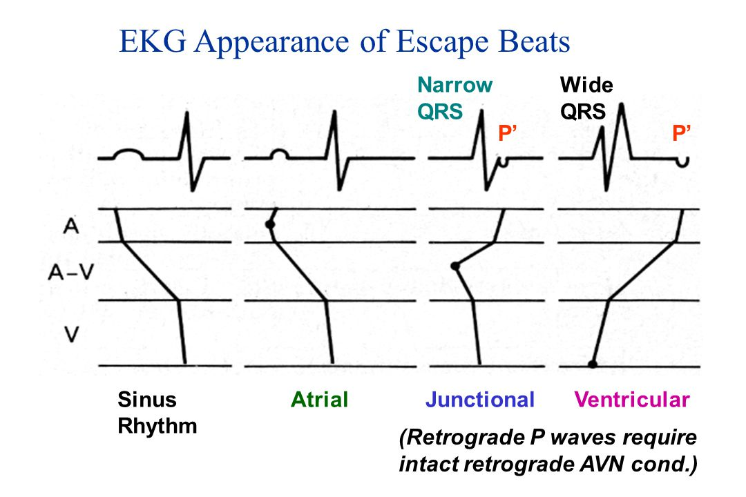 EKG Appearance of Escape Beats