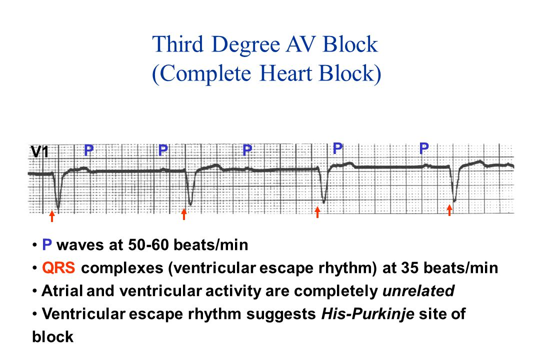 (Complete Heart Block)