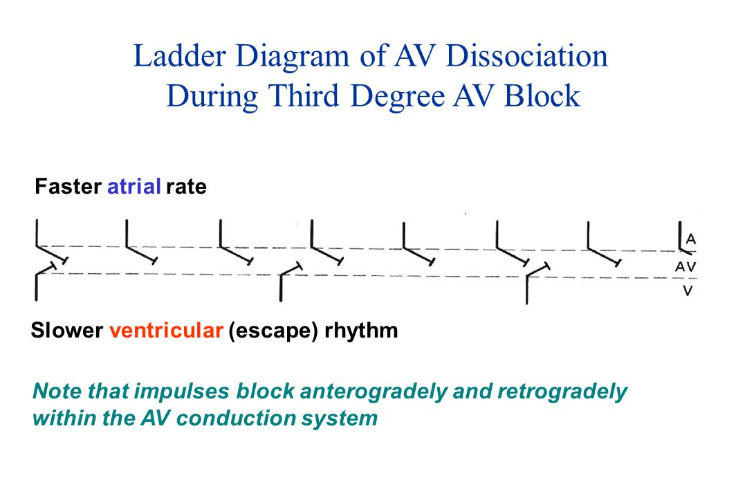 Ladder Diagram of AV Dissociation During Third Degree AV Block