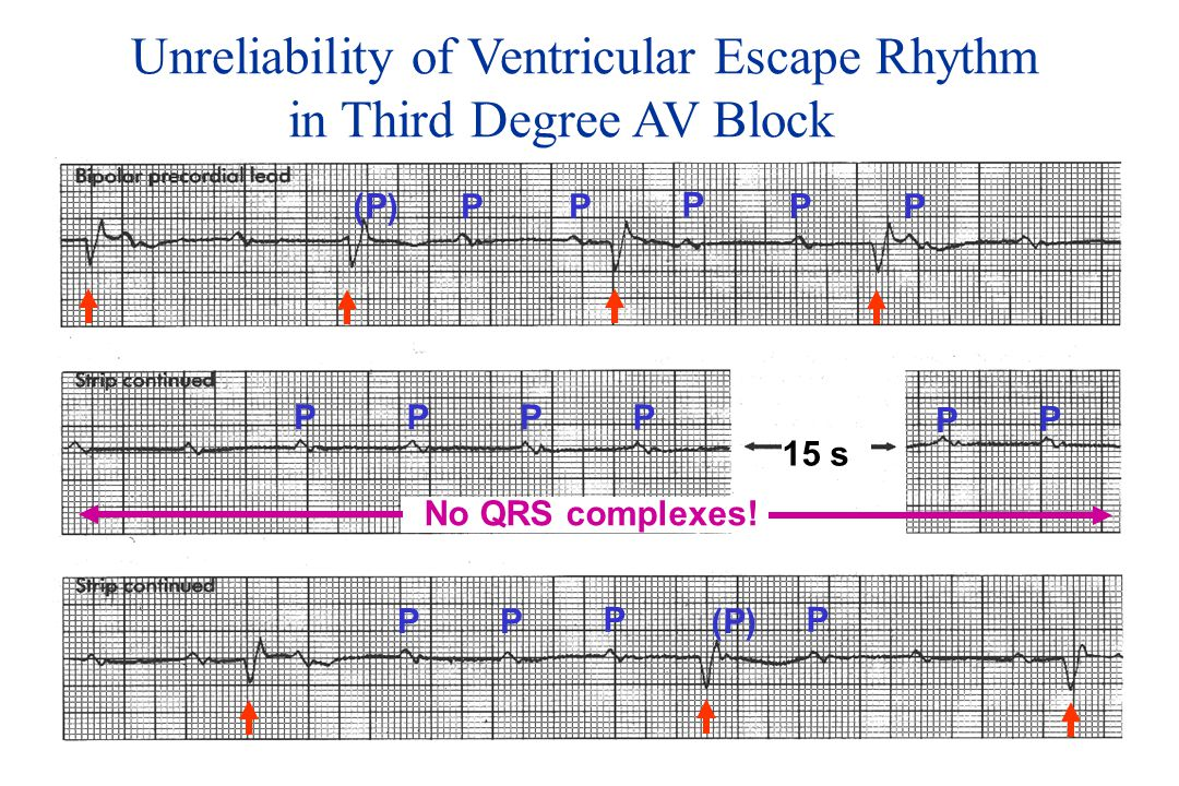 Unreliability of Ventricular Escape Rhythm in Third Degree AV Block