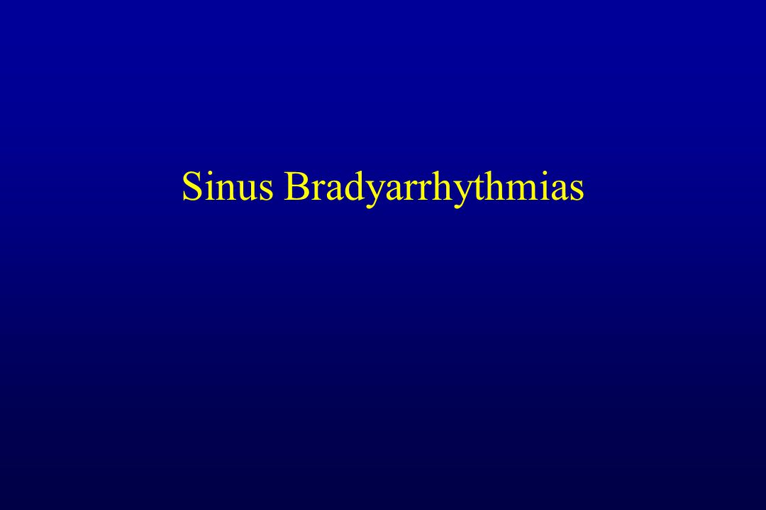 Sinus Bradyarrhythmias