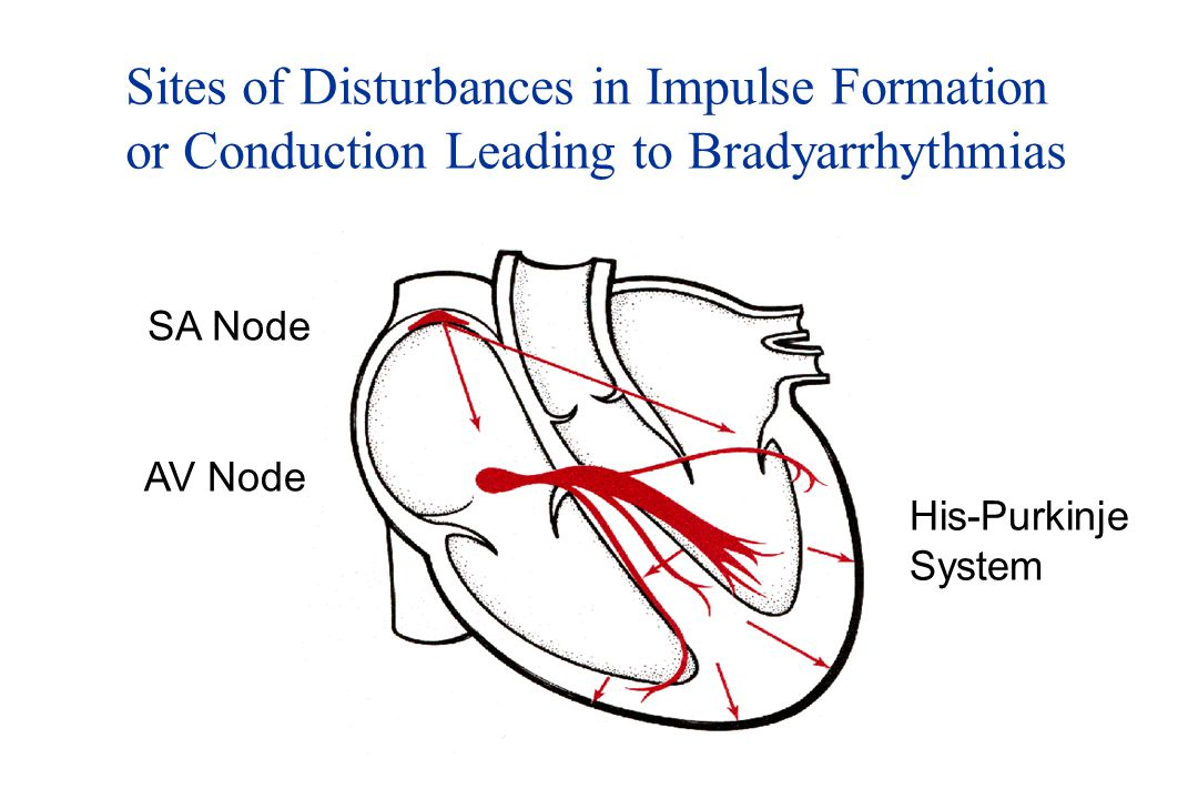 Sites of Disturbances in Impulse Formation