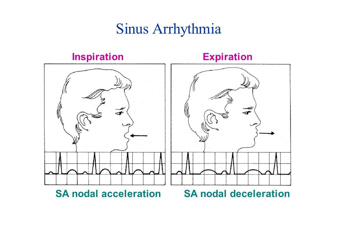 Sinus Arrhythmia Inspiration Expiration SA nodal acceleration