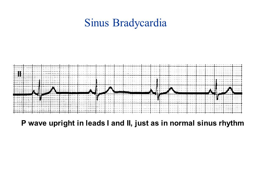 Sinus Bradycardia II P wave upright in leads I and II, just as in normal sinus rhythm