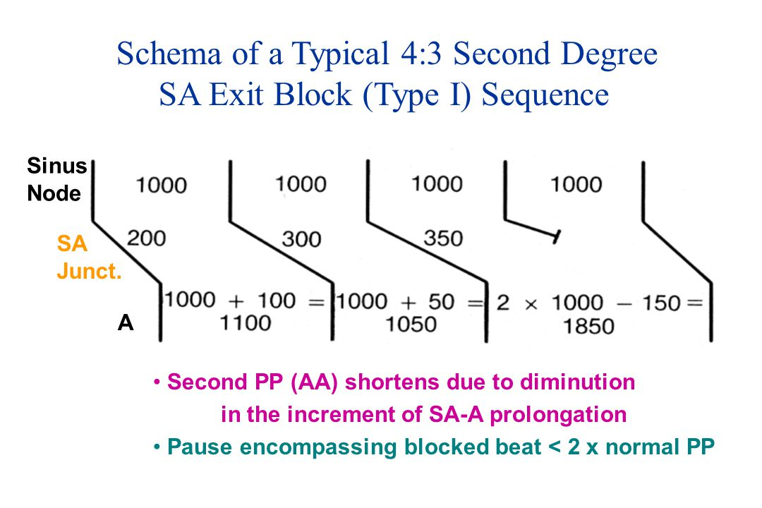 Schema of a Typical 4:3 Second Degree SA Exit Block (Type I) Sequence