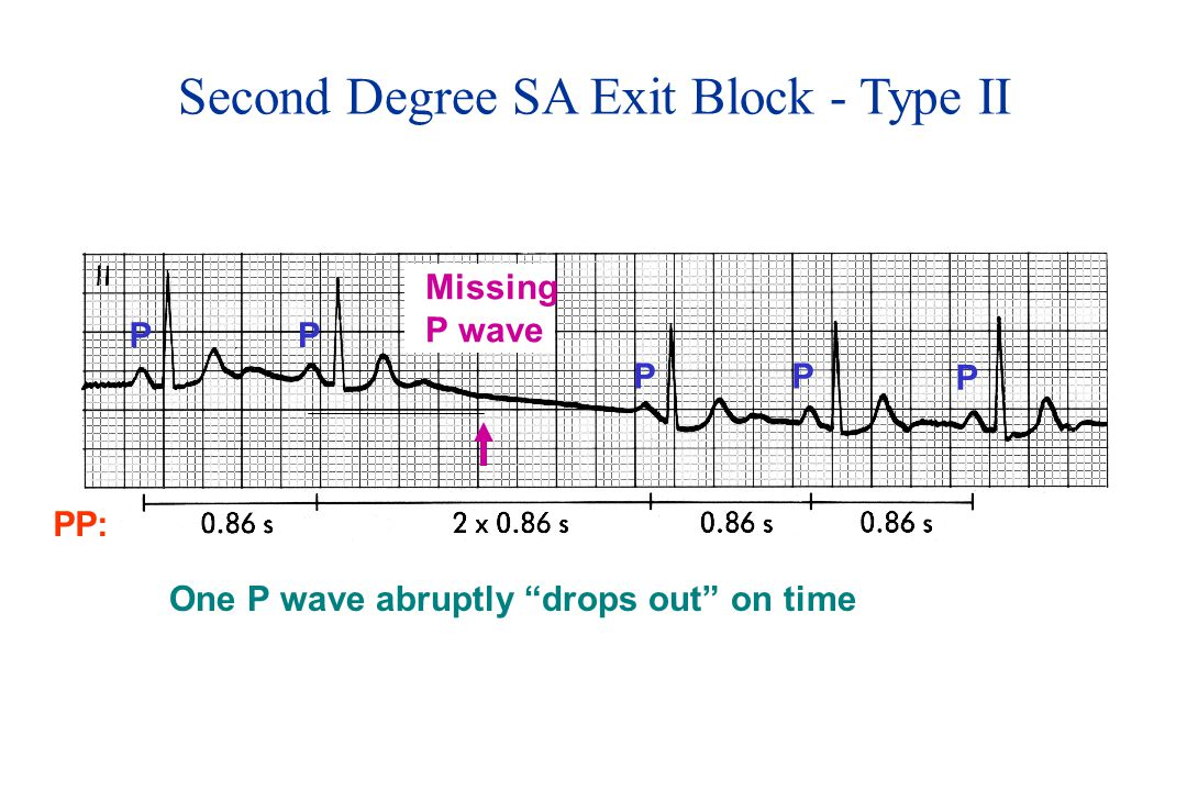 Second Degree SA Exit Block - Type II