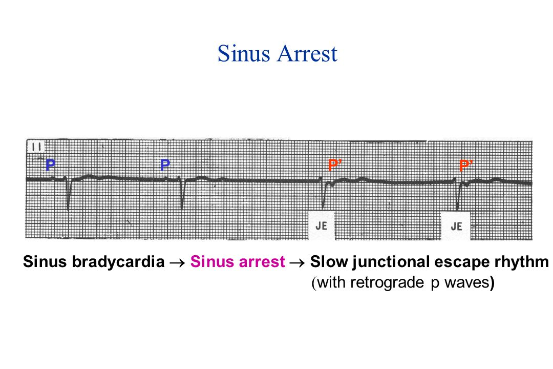 Sinus Arrest P. P. P' P' Sinus bradycardia  Sinus arrest  Slow junctional escape rhythm.