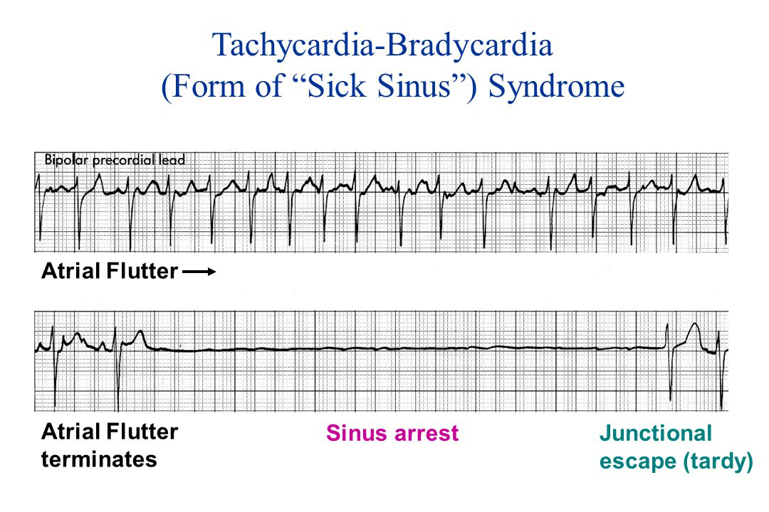 Tachycardia-Bradycardia (Form of Sick Sinus ) Syndrome