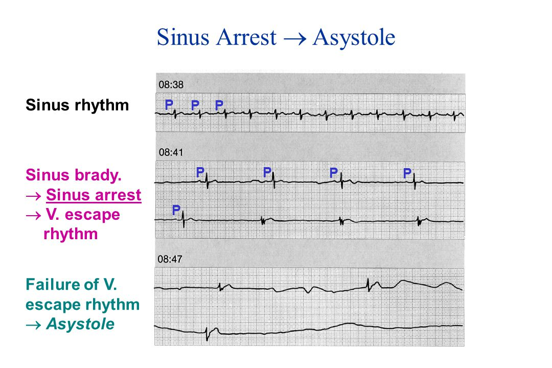 Sinus Arrest  Asystole