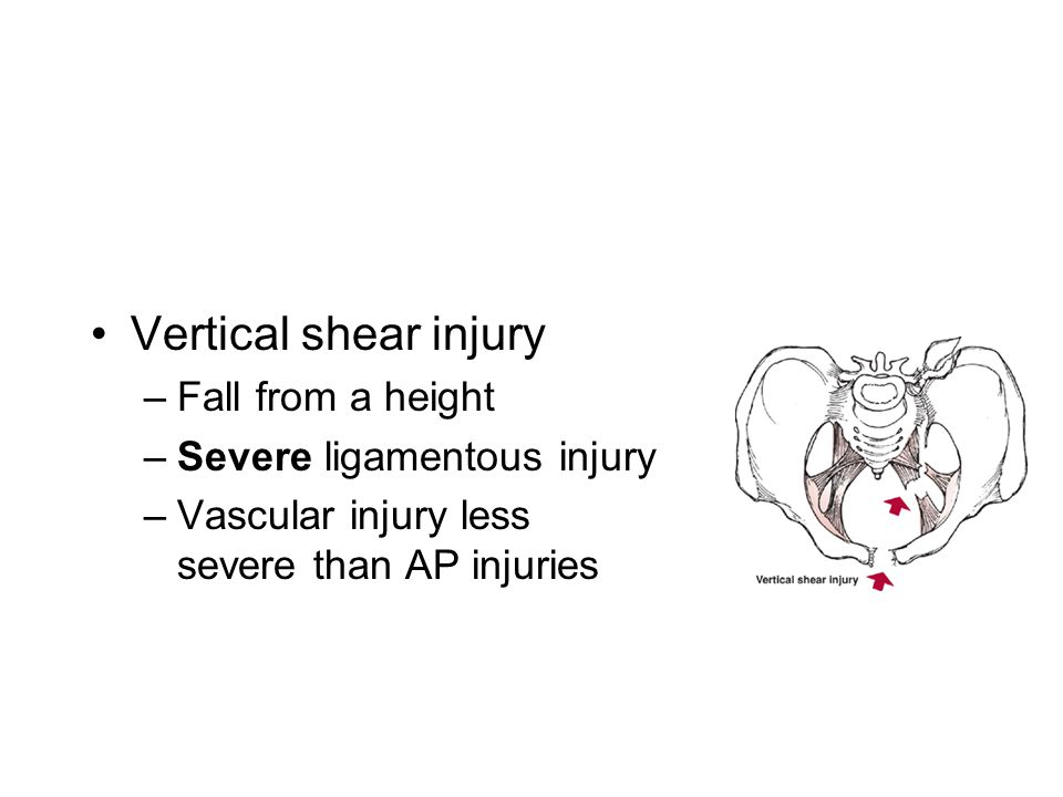 Vertical shear injury Fall from a height Severe ligamentous injury