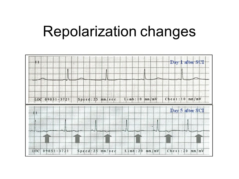 Repolarization changes