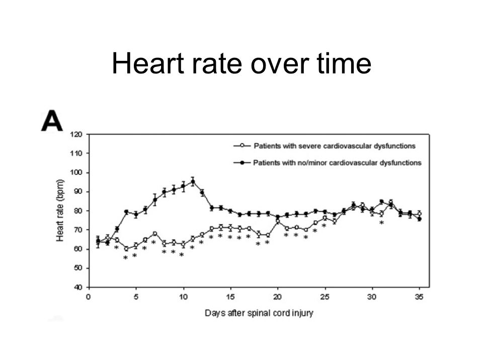 Heart rate over time