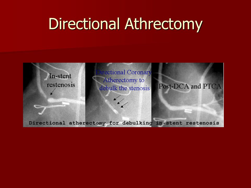 Directional Athrectomy