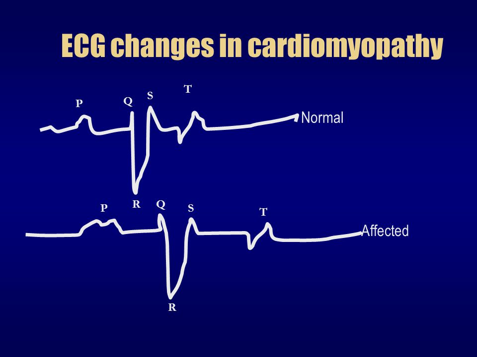 ECG changes in cardiomyopathy