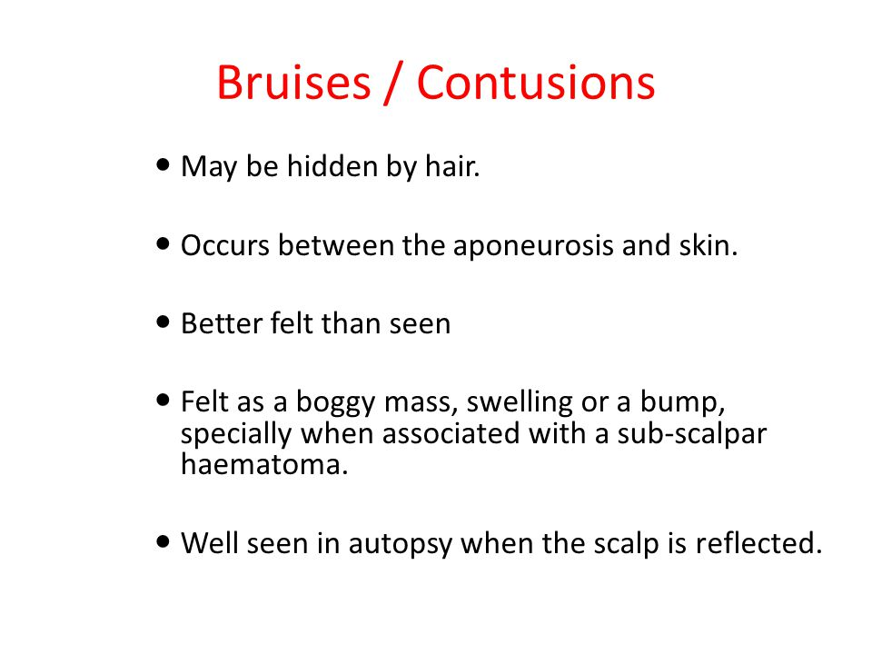 Bruises / Contusions May be hidden by hair.