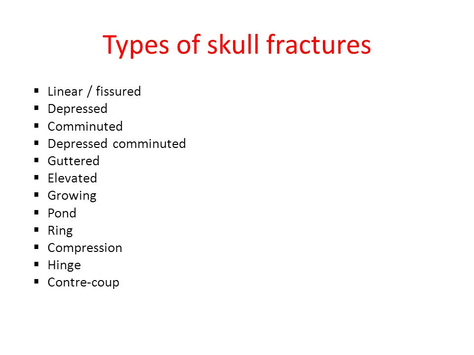 Types of skull fractures