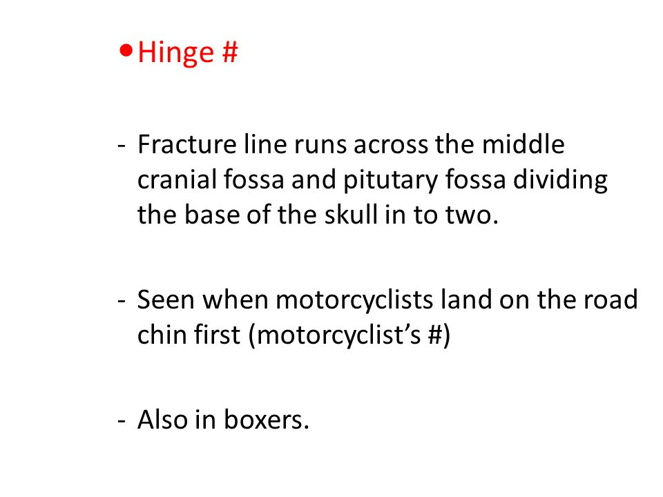 Hinge # Fracture line runs across the middle cranial fossa and pitutary fossa dividing the base of the skull in to two.