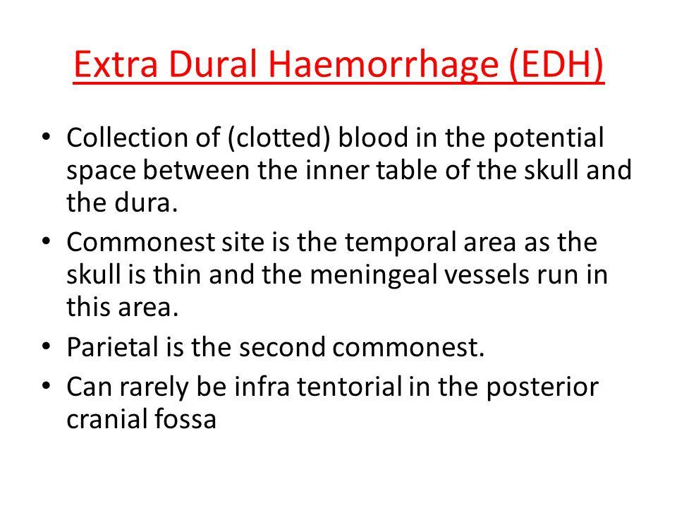 Extra Dural Haemorrhage (EDH)