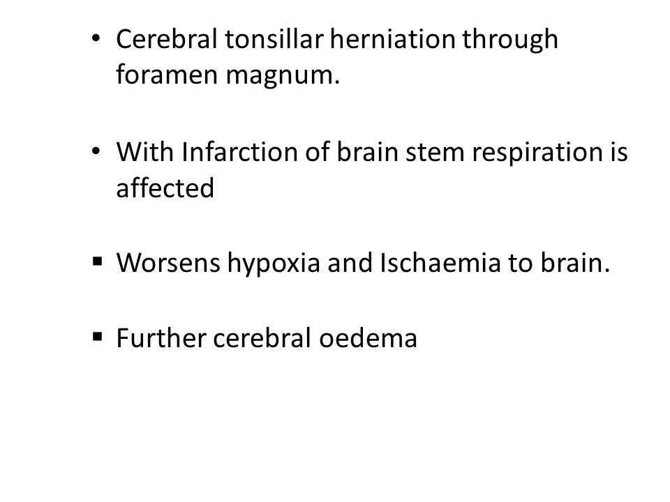 Cerebral tonsillar herniation through foramen magnum.