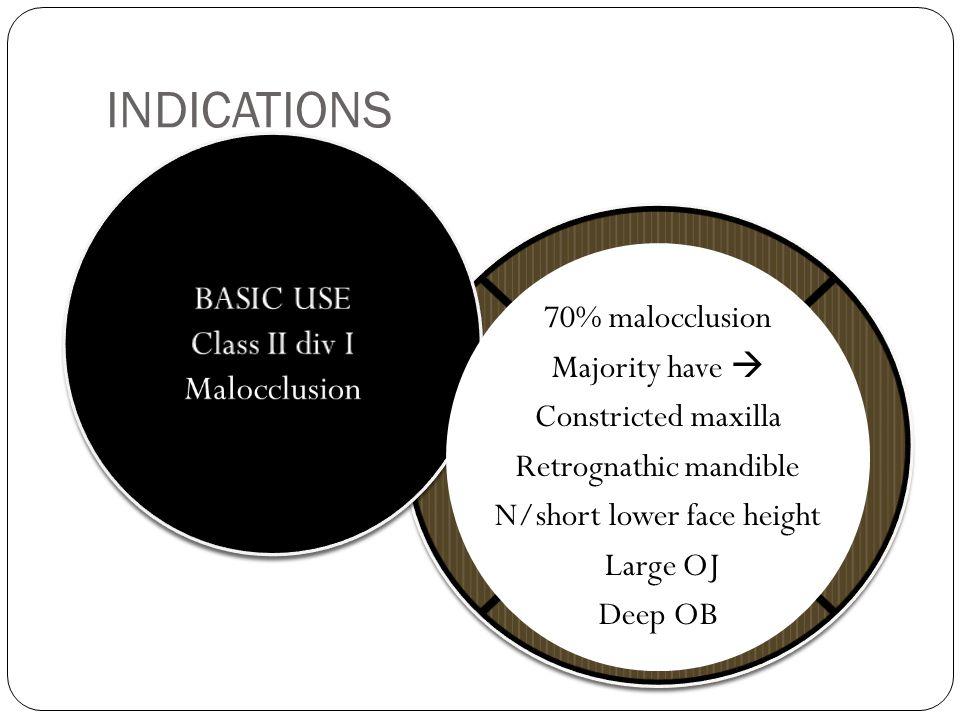 Class II div I Malocclusion
