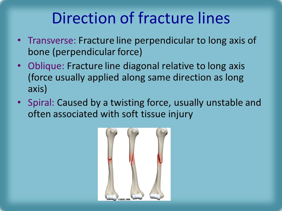 Direction of fracture lines