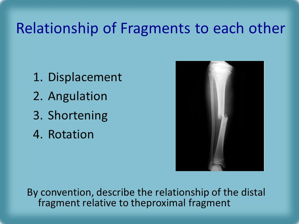 Relationship of Fragments to each other