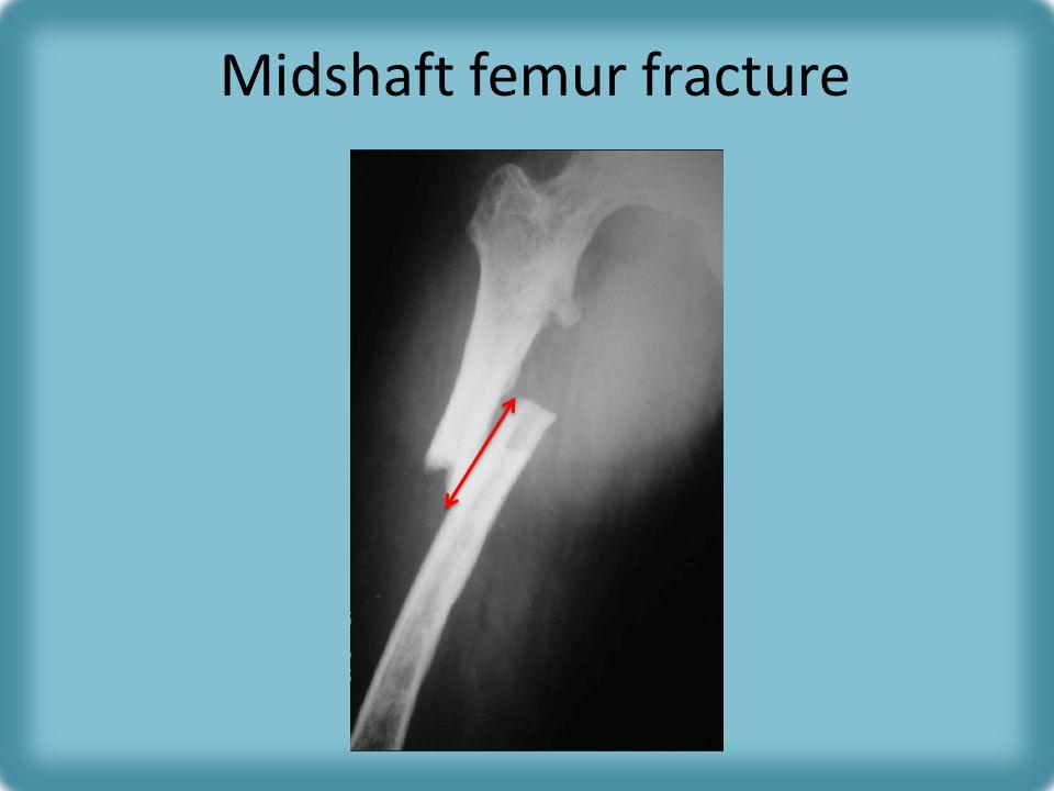 Midshaft femur fracture
