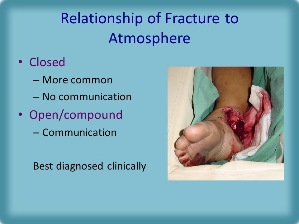 Relationship of Fracture to Atmosphere