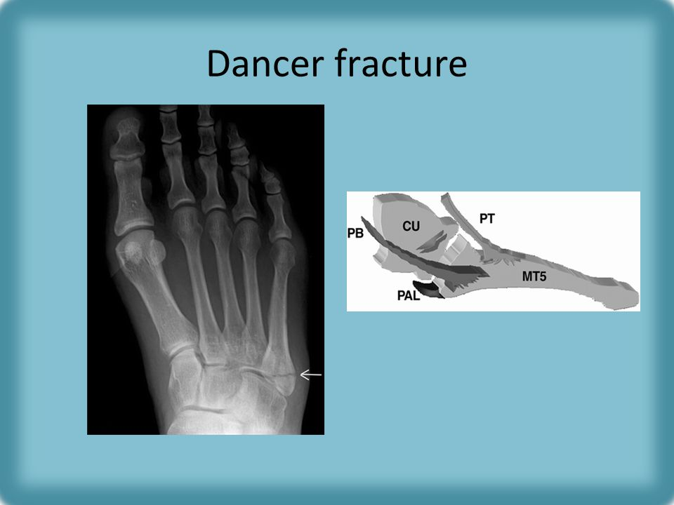 Dancer fracture Frontal radiograph of the foot shows an oblique, minimally displaced avulsion fracture at the base of the fifth metatarsal.