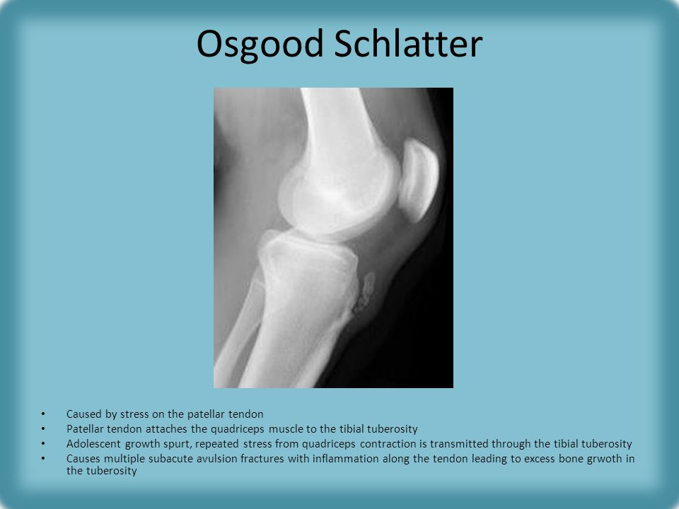 Osgood Schlatter Caused by stress on the patellar tendon