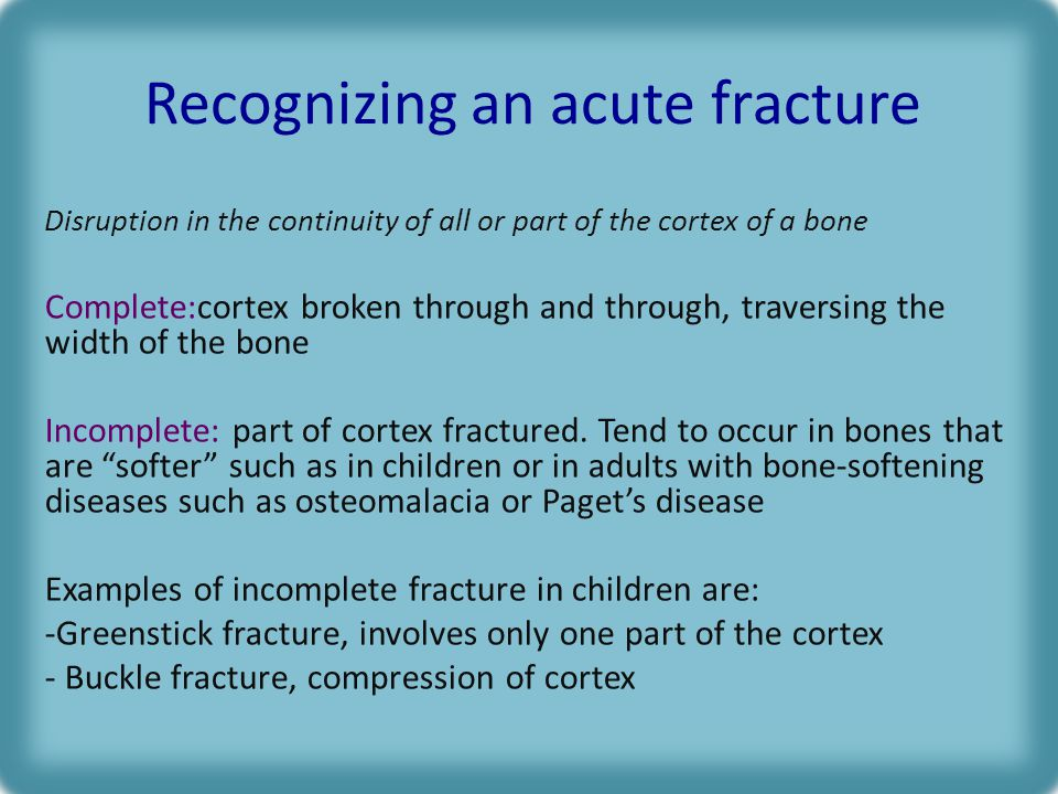 Recognizing an acute fracture