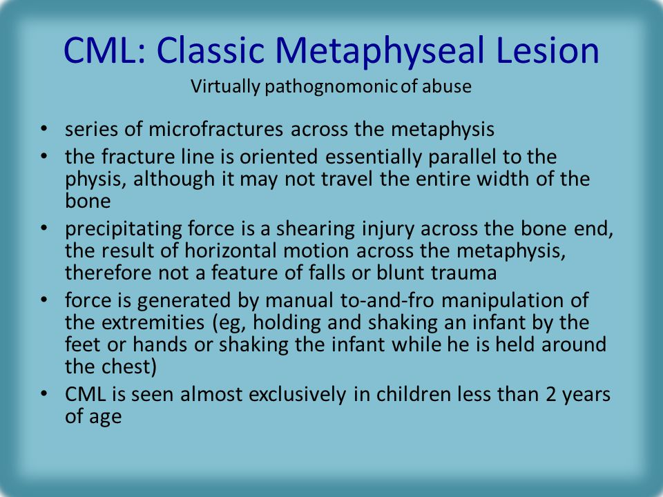 CML: Classic Metaphyseal Lesion Virtually pathognomonic of abuse