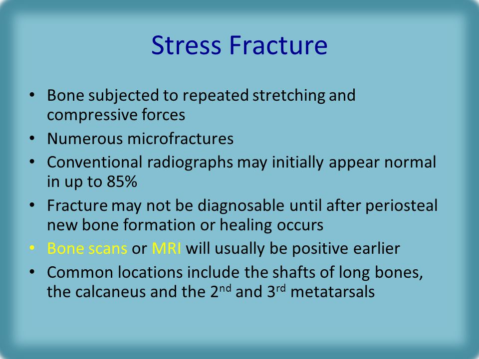 Stress Fracture Bone subjected to repeated stretching and compressive forces. Numerous microfractures.