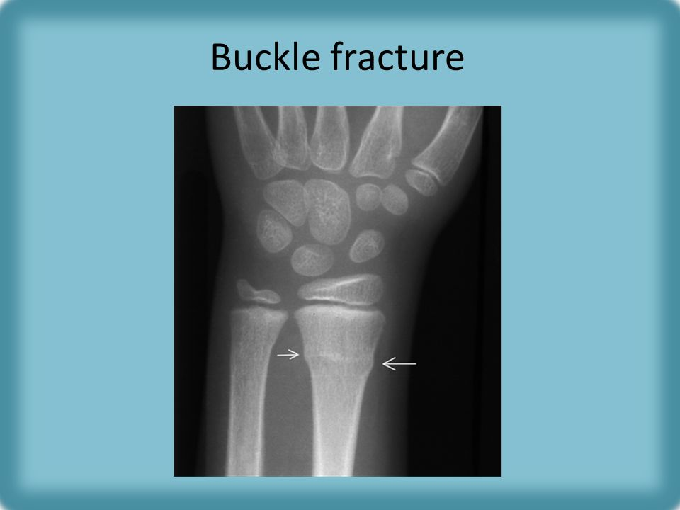 Buckle fracture Child who fell on outstretched hand, buckling of metaphyseal cortex