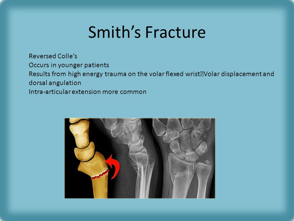 Smith's Fracture Reversed Colle's Occurs in younger patients