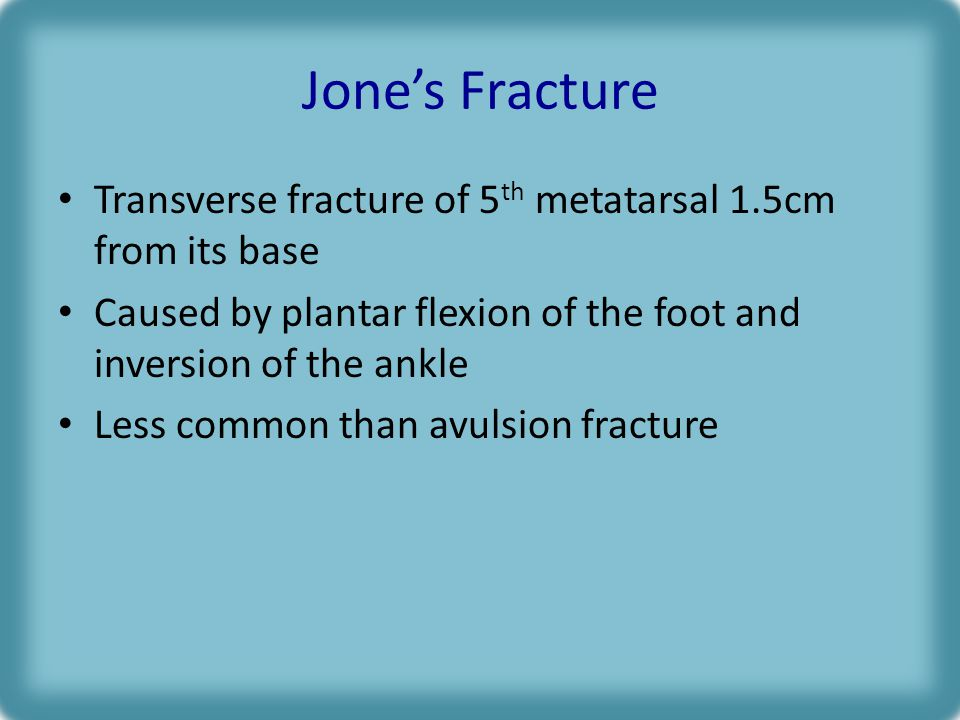 Jone's Fracture Transverse fracture of 5th metatarsal 1.5cm from its base. Caused by plantar flexion of the foot and inversion of the ankle.