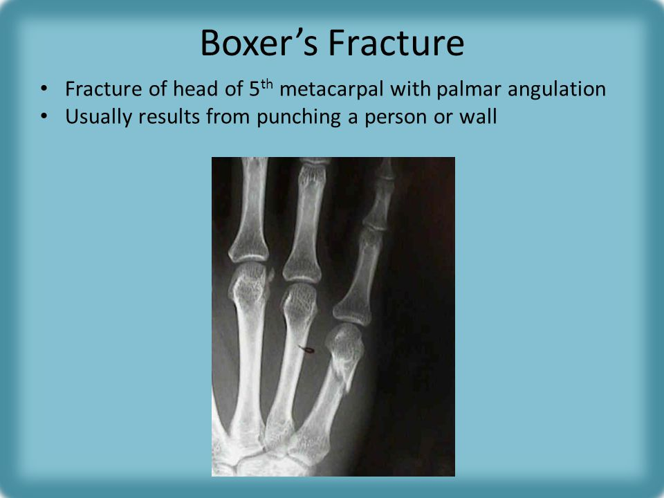 Boxer's Fracture Fracture of head of 5th metacarpal with palmar angulation.