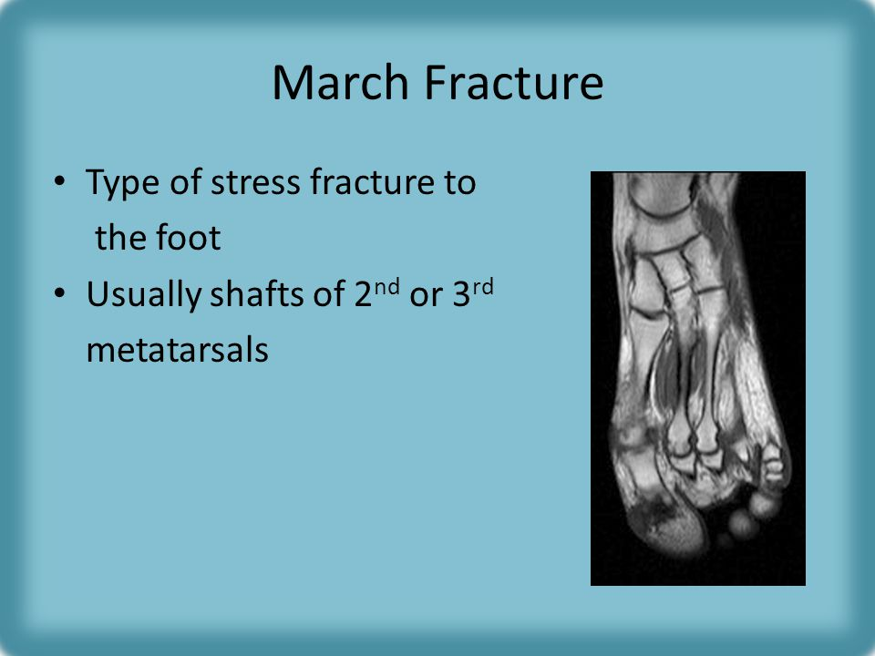 March Fracture Type of stress fracture to the foot
