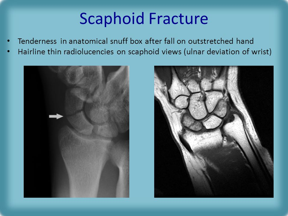 Scaphoid Fracture Tenderness in anatomical snuff box after fall on outstretched hand.