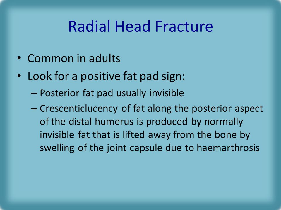 Radial Head Fracture Common in adults