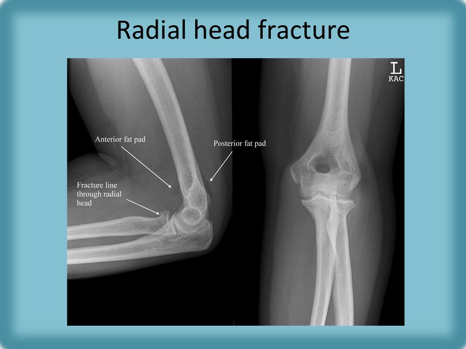 Radial head fracture Posterior fat pad usually invisible