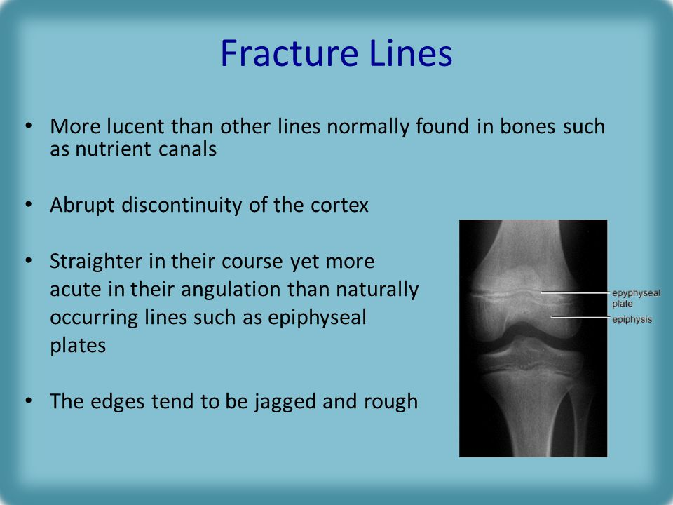Fracture Lines More lucent than other lines normally found in bones such as nutrient canals. Abrupt discontinuity of the cortex.