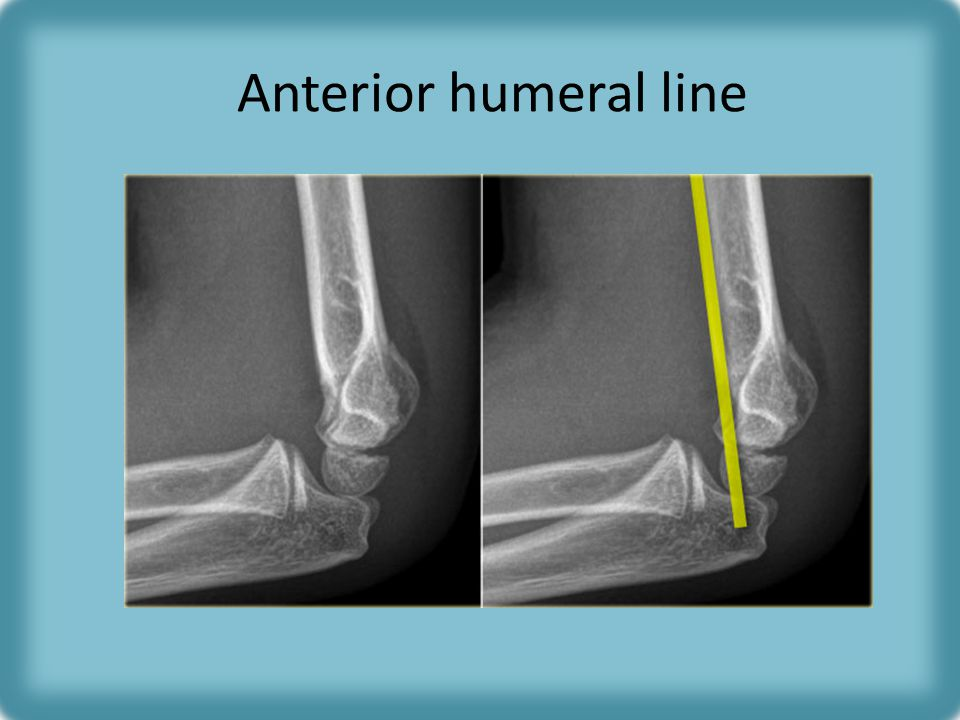 Anterior humeral line Should pass through middle third of capitellum