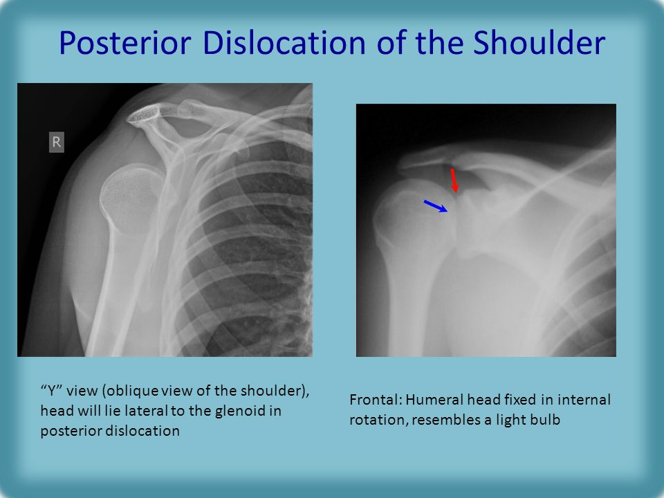 Posterior Dislocation of the Shoulder