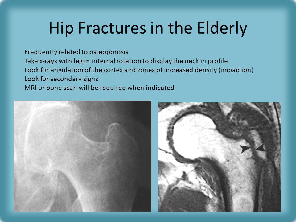 Hip Fractures in the Elderly